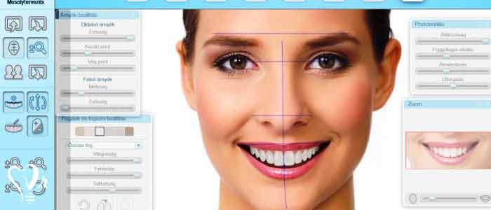 لمینت دندان | قیمت لمینت دندان - طراحی لبخند دیجیتال (DSD) چیست؟