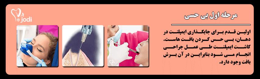 مرحله اول جایگذاری ایمپلنت دندان: بی حسی