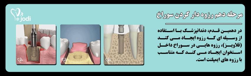مرحله دهم جایگذاری ایمپلنت دندان: رزوه دار کردن سوراخ استخوان