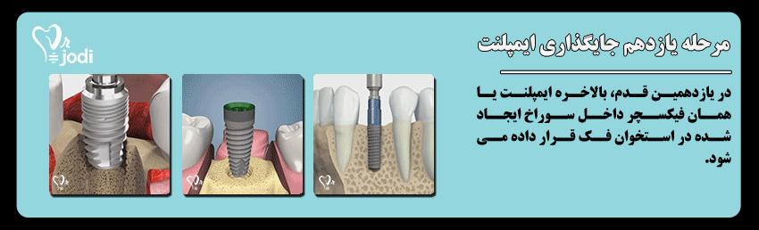 مرحله یازدهم جایگذاری ایمپلنت دندان: جایگذاری ایمپلنت