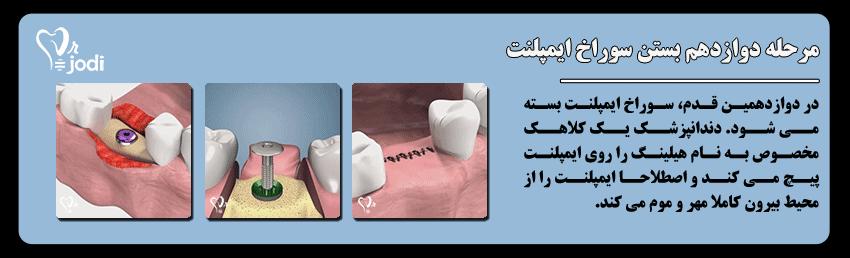 مرحله دوازدهم جایگذاری ایمپلنت دندان: بستن سوراخ ایمپلنت با پیچ درپوش