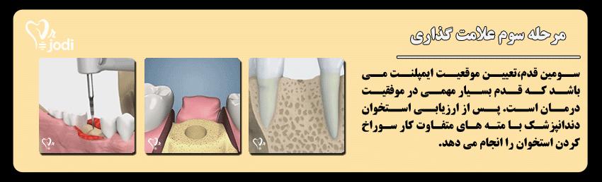 مرحله سوم جایگذاری ایمپلنت دندان: علامت گذاری