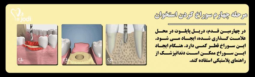 مرحله چهارم جایگذاری ایمپلنت دندان: سوراخ کردن استخوان