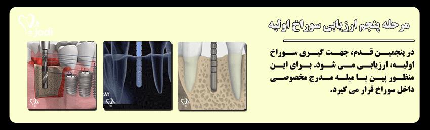 مرحله پنجم جایگذاری ایمپلنت دندان: ارزیابی جهت و راستای سوراخ اولیه
