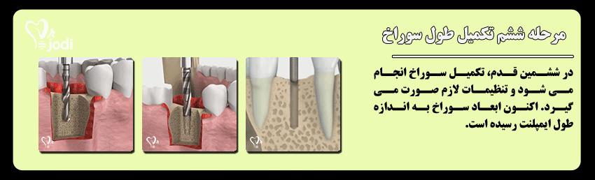 مرحله ششم جایگذاری ایمپلنت دندان: تکمیل طول سوراخ استخوان