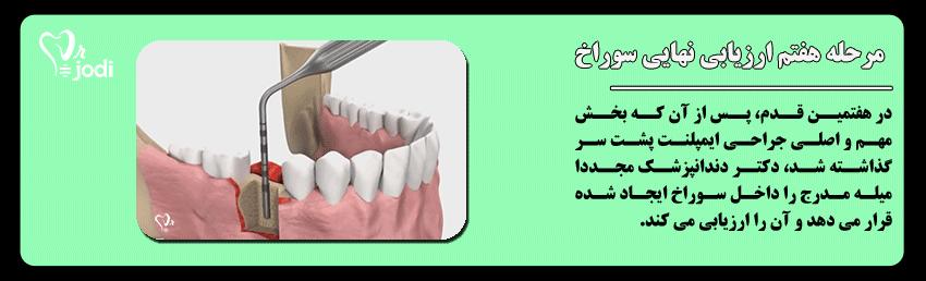 مرحله هفتم جایگذاری ایمپلنت دندان: ارزیابی سوراخ پیش از جایگذاری ایمپلنت