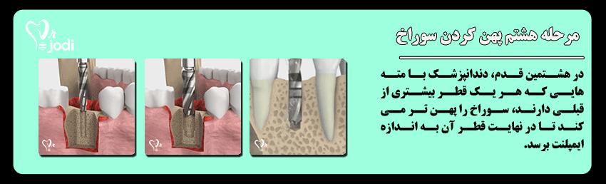مرحله هشتم جایگذاری ایمپلنت دندان: پهن کردن سوراخ استخوان