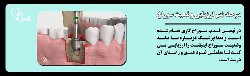 مرحله نهم جایگذاری ایمپلنت دندان: ارزیابی وضعیت سوراخ محل کاشت ایمپلنت