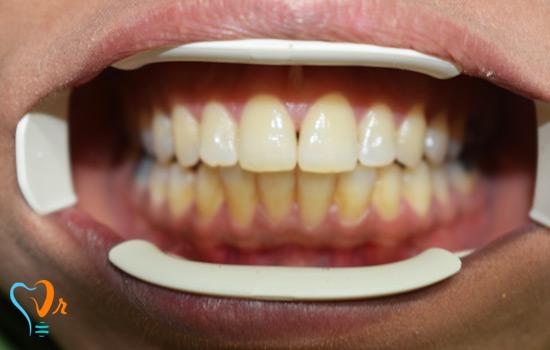 جرم گیری و بیلیچینگ دندان