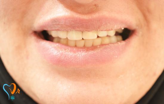 عکس های بیمار ایمپلنت دندان تیر ماه سال 96