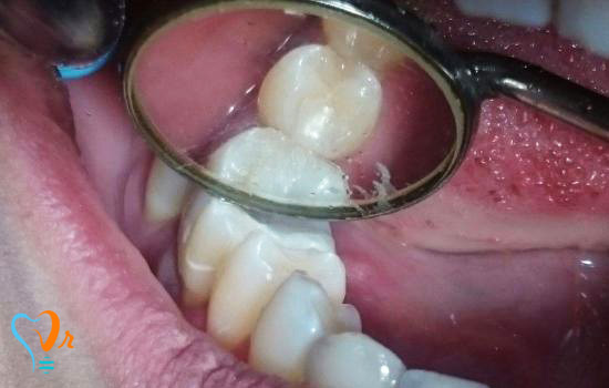عکس بیمار ترمیم دندان دی 95