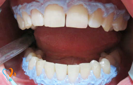 عکس قبل و بعد بیمار بلیچینگ دندان دی 95