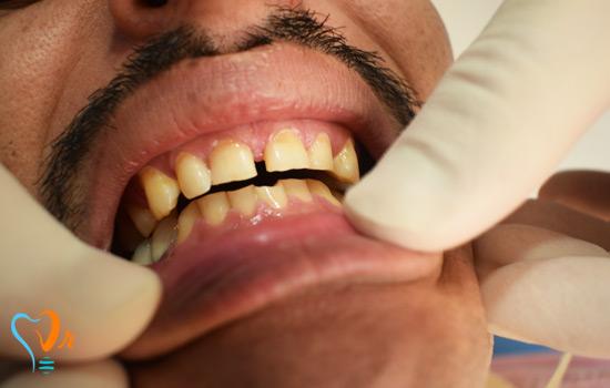 Laminated Teeth
