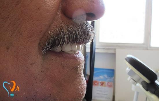 عکس قبل و بعد بیمار لمینت مهر 97