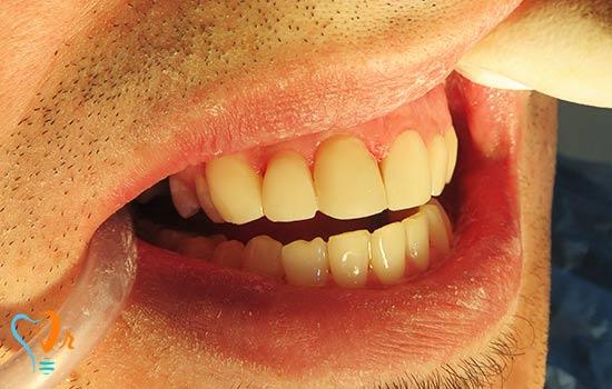 جرم گیری و ترمیم دندان