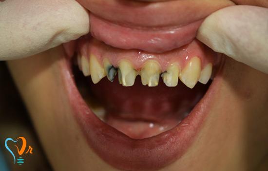 عکس قبل و بعد بیمار روکش دندان فروردین 96