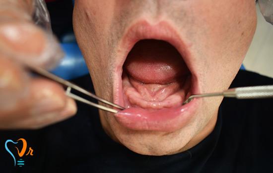 معرض الصور زرع الأسنان 9