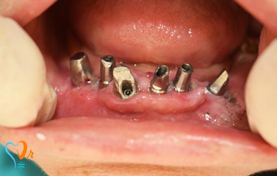 عکس های بیمار کاشت دندان اردیبهشت ماه سال 96