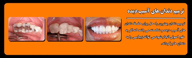 چگونگی ترمیم دندان