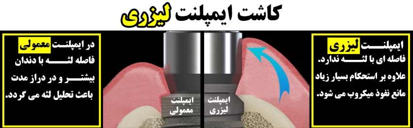 همه چیز در مورد ایمپلنت دندان- کاشت و درمان ایمپلنت دندان با لیزر