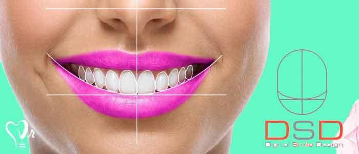 لمینت دندان | قیمت لمینت دندان - آیا بیمار در طراحی لبخند دیجیتال (DSD) همکاری و شراکت دارد؟