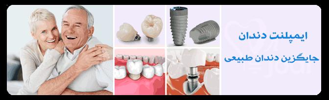 هزینه کاشت دندان - ایمپنت دندان