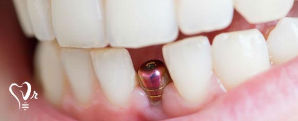 یمپلنت دندان یک قطعه ای رزوه دار