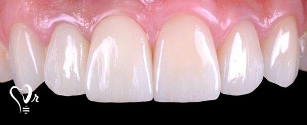 آیا همه می توانند ایمپلنت دندان فوری انجام دهند؟