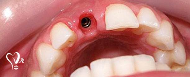 کاشت دندان به روش پانچ