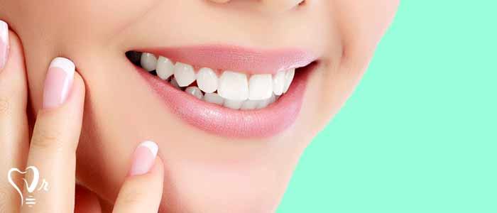 لمینت دندان | قیمت لمینت دندان