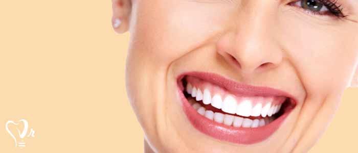 لمینت دندان |قیمت لمینت دندان8
