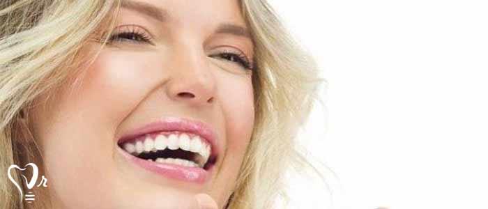 قیمت لمینت دندان چقدر است؟