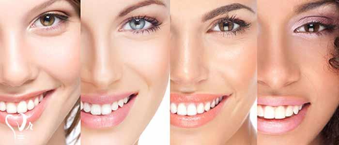 لمینت دندان | قیمت لمینت دندان - جایگزین شدن لمینت به جای ارتودنسی؟