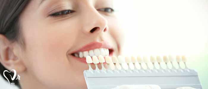 لمینت دندان | قیمت لمینت دندان - آیا لمینت به مرور زمان رنگ می گیرد؟