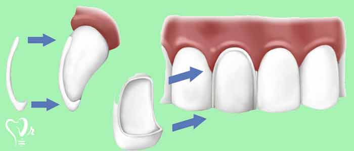 لمینت دندان | قیمت لمینت دندان - لمینت دندان