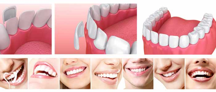 لمینت دندان | قیمت لمینت دندان - عوارض احتمالی لمینت دندان