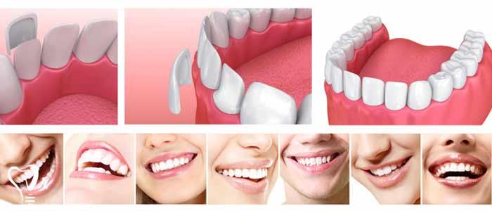 لمینت دندان |قیمت لمینت دندان18