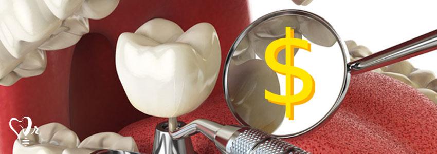 هزینه کاشت دندان به چه صورت است ؟16