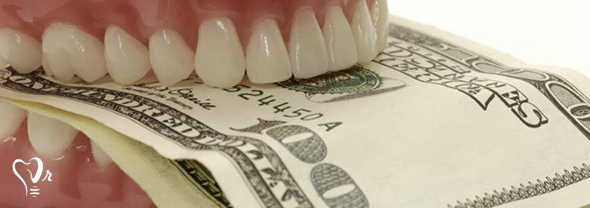 هزینه کاشت دندان به چه صورت است ؟2