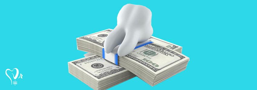 هزینه کاشت دندان به چه صورت است ؟12