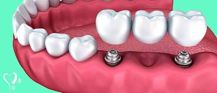 کاشت دندان ایمپلنت 2