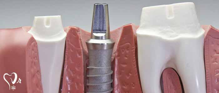 کاشت دندان ایمپلنت 3