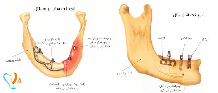 کاشت دندان ایمپلنت 16