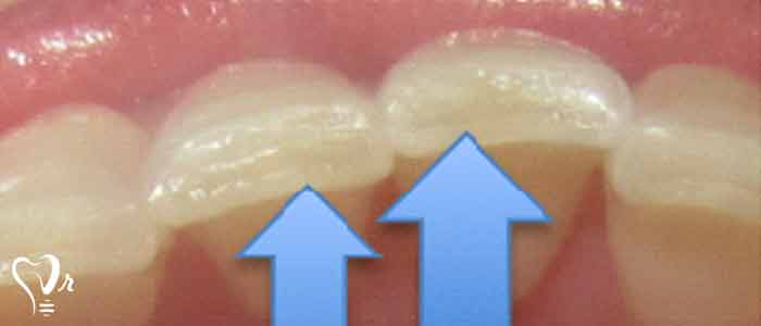 مقدمه - ایمپلنت دندان قروچه