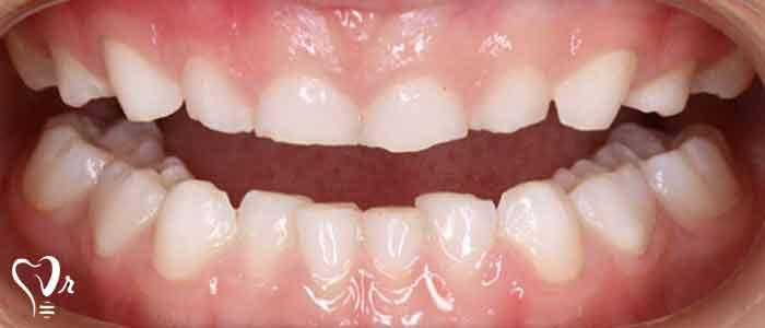 دندان قروچه چیست؟ - ایمپلنت دندان قروچه