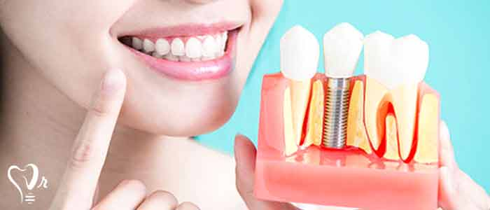 کاشت ایمپلنت دندان در بیماران دندان قروچه - ایمپلنت دندان قروچه