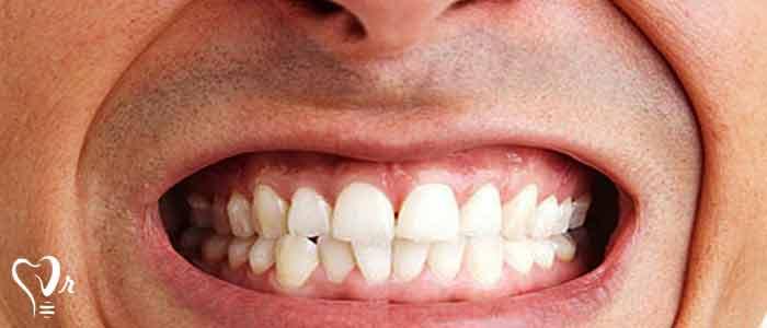 محافظت از ایمپلنت در مقابل دندان قروچه - ایمپلنت دندان قروچه