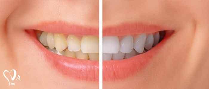 قیمت بلیچینگ دندان در سال 98