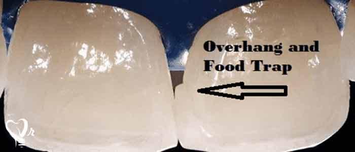 دیواره تخریب شده دندان