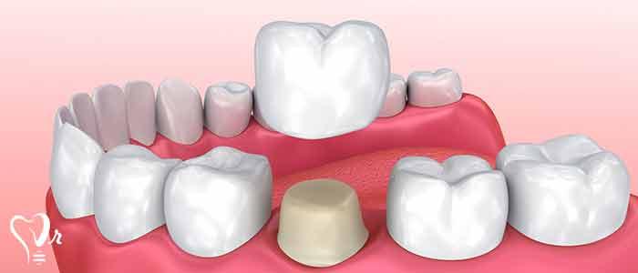 دیواره باکال دندان
